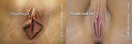 Clitoral Hood Lift - Before and After
